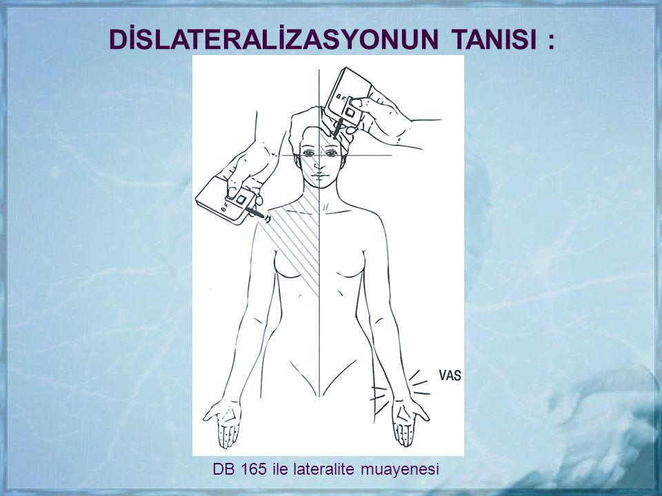 DB 165 ile lateralite muayenesi DİSLATERALİZASYONUN TANISI :