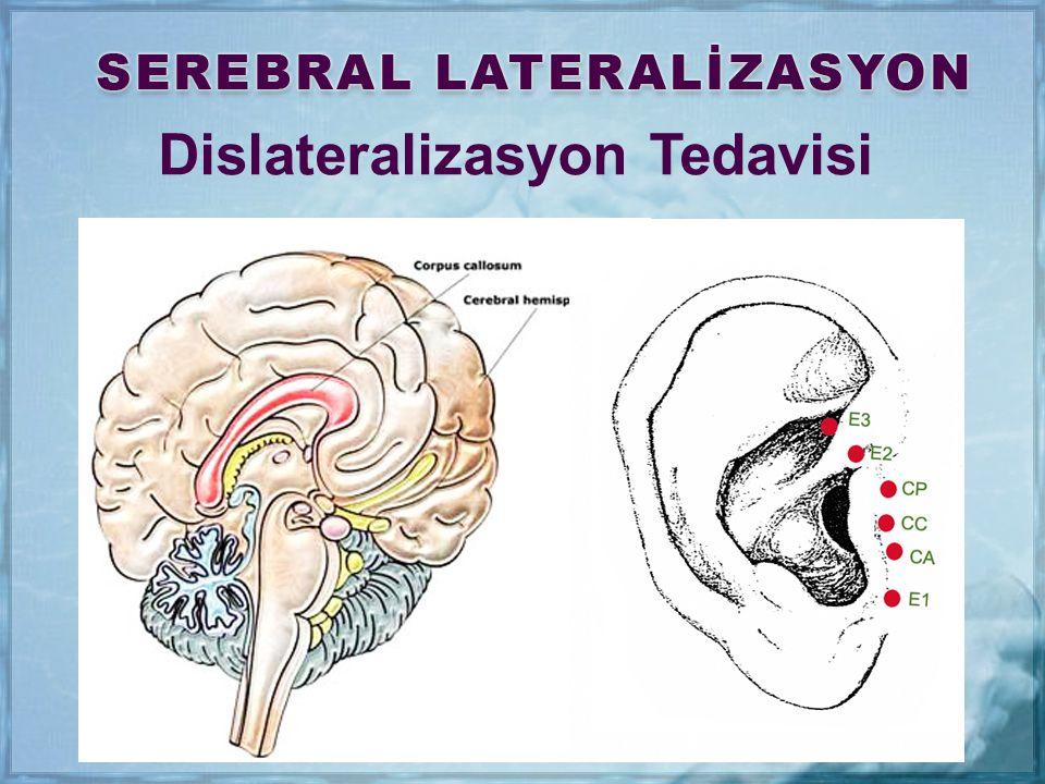Dislateralizasyon Tedavisi