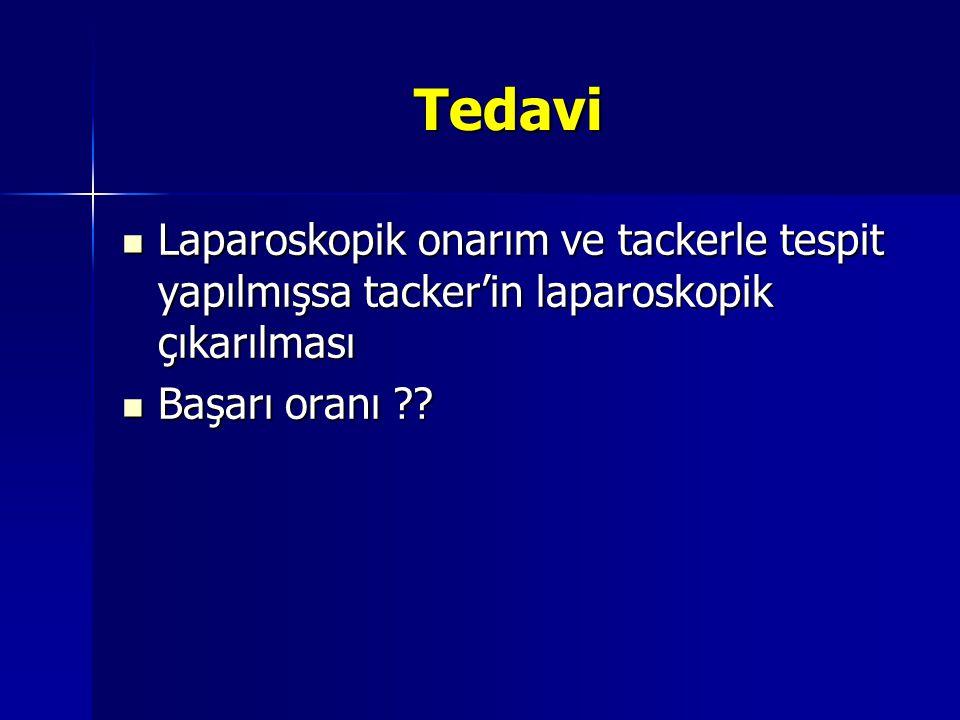 Tedavi Laparoskopik onarım ve tackerle tespit yapılmışsa tacker'in laparoskopik çıkarılması Laparoskopik onarım ve tackerle tespit yapılmışsa tacker'i