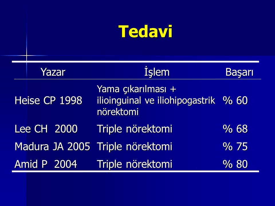 Tedavi YazarİşlemBaşarı Heise CP 1998 Yama çıkarılması + ilioinguinal ve iliohipogastrik nörektomi % 60 Lee CH 2000 Triple nörektomi % 68 Madura JA 20