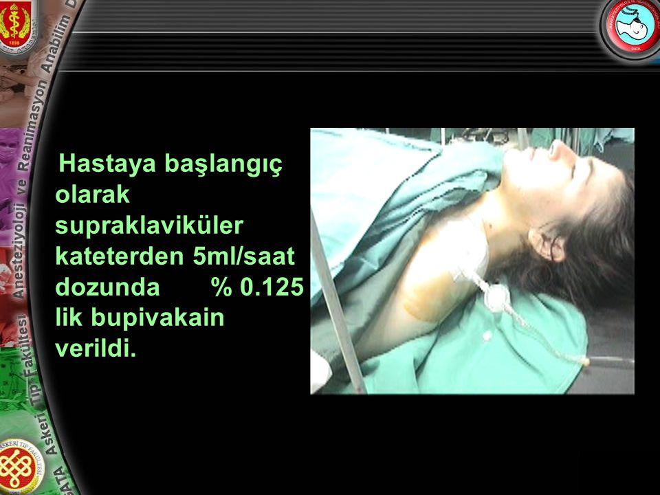 10 Hastaya başlangıç olarak supraklaviküler kateterden 5ml/saat dozunda % 0.125 lik bupivakain verildi.
