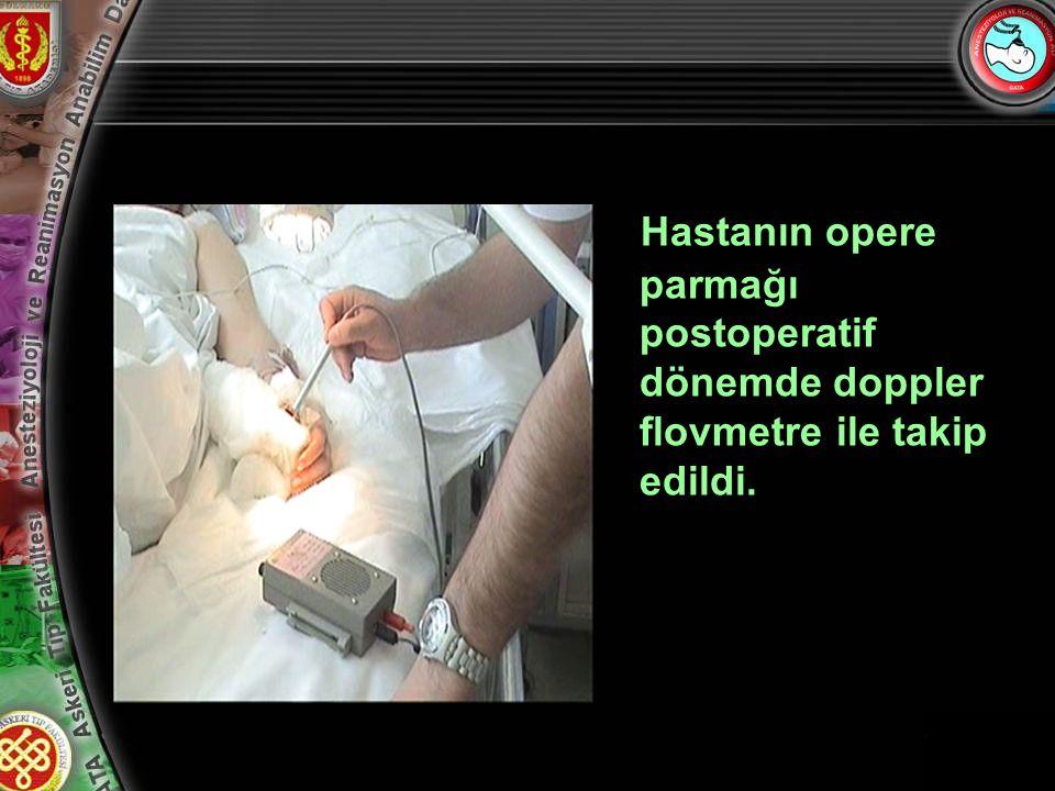 12 Hastanın opere parmağı postoperatif dönemde doppler flovmetre ile takip edildi.
