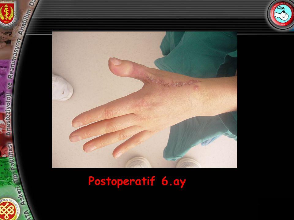 13 Postoperatif 6.ay