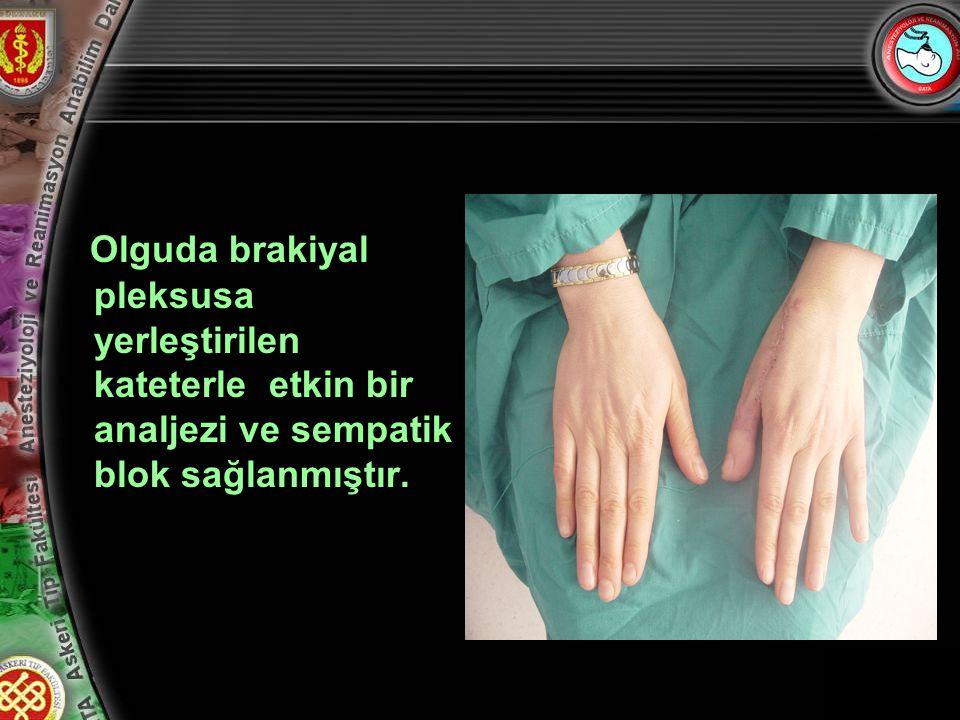 17 Olguda brakiyal pleksusa yerleştirilen kateterle etkin bir analjezi ve sempatik blok sağlanmıştır.
