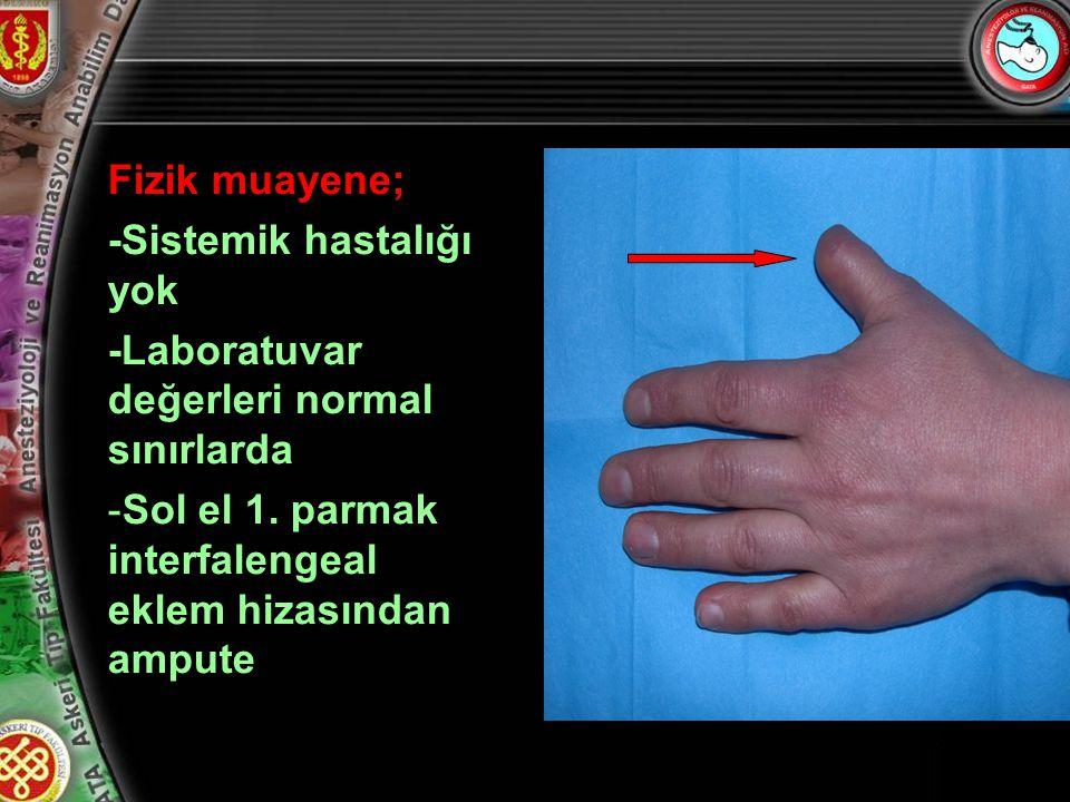 5 Fizik muayene; -Sistemik hastalığı yok -Laboratuvar değerleri normal sınırlarda -Sol el 1. parmak interfalengeal eklem hizasından ampute