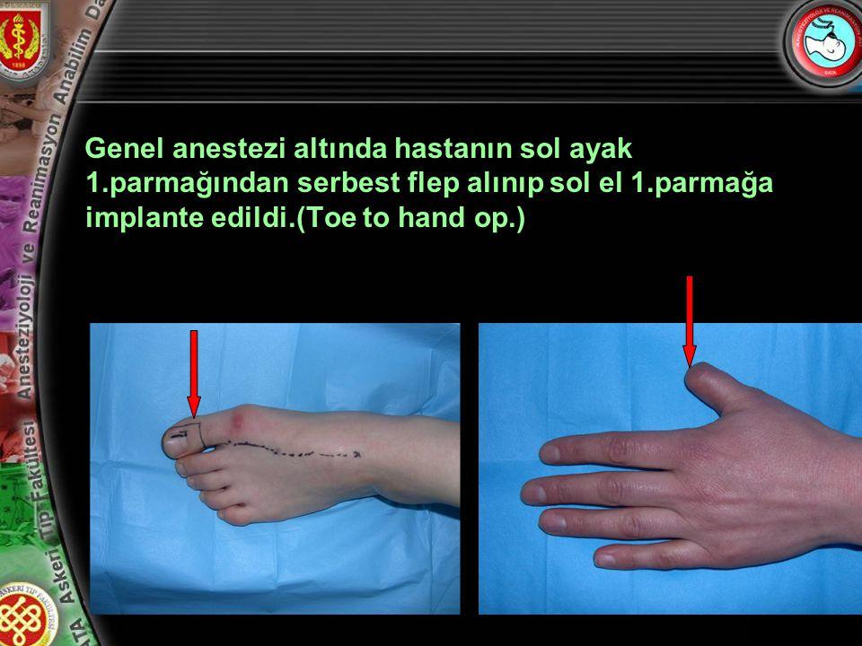 6 Genel anestezi altında hastanın sol ayak 1.parmağından serbest flep alınıp sol el 1.parmağa implante edildi.(Toe to hand op.)