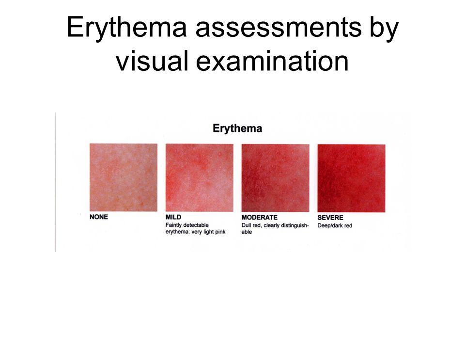 Atopik dermatitin klinik 3 fazı mevcuttur. Akut faz : –Şiddetli kaşıntı –Eritem, –Ödem, –Vezikül, –Ekskoriasyon, –Seröz sızıntı ve kabuklanma.