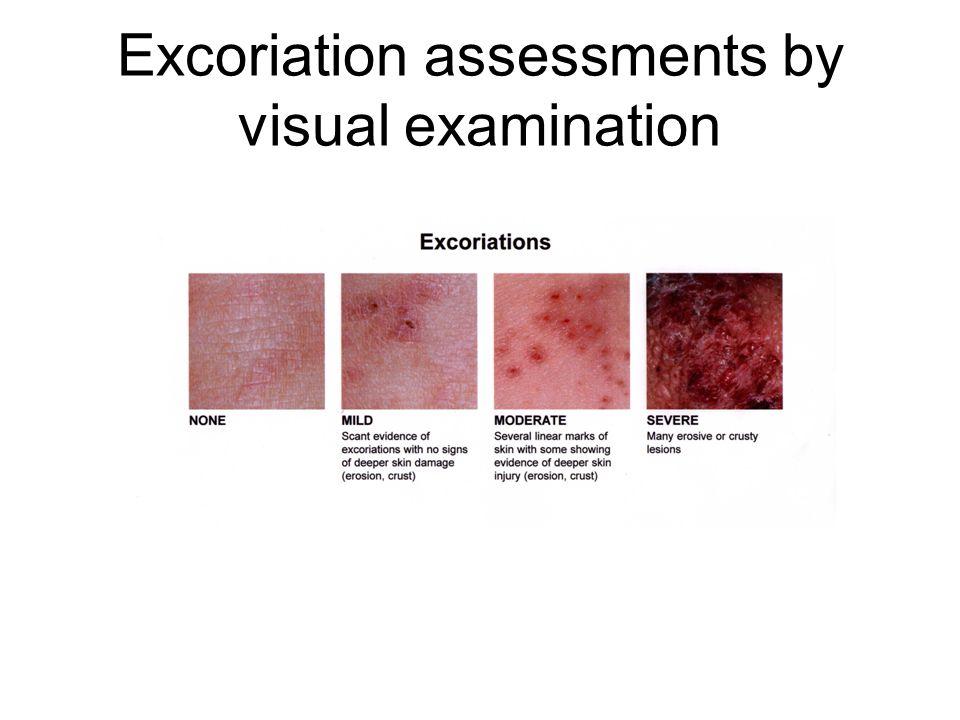Ekskoriasyon Lokal olarak epidermis kaybıdır. Abrasyon veya kaşıma sonucu ortaya çıkar. Çizgi şeklinde olabilir. *Skabies *Atopik dermatit *Kronik ürt