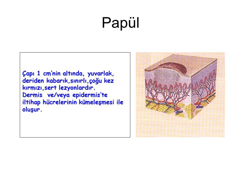 Subakut faz: Eritematöz deri üzerinde ekskoriye, üzeri kabuklanmış olan papüller bulunur. Deride kalınlaşma ve hafif pullanma başlamıştır.