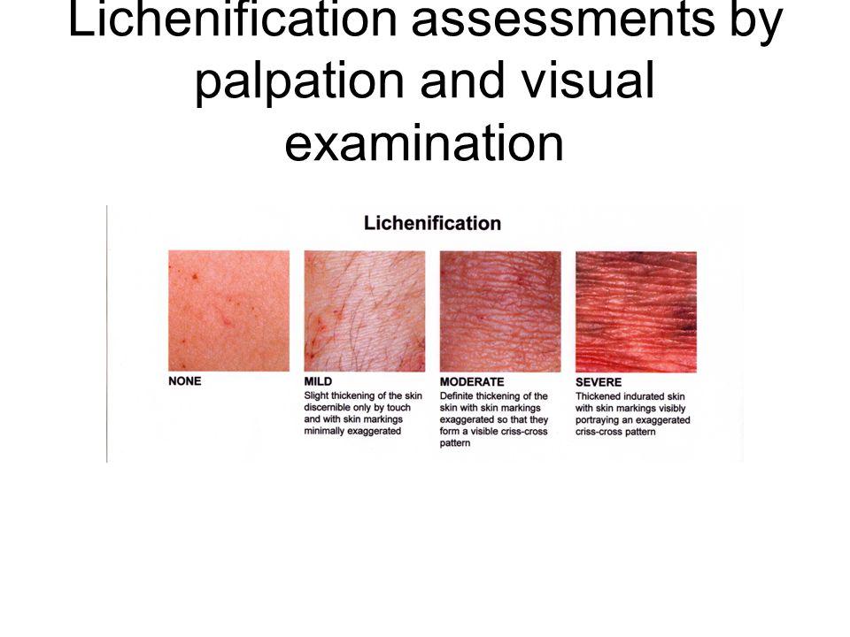Likenifikasyon Sürekli kaşıma ve sürtmeye bağlı olarak epidermisin kalınlaşmasıdır. Normal deri çizgileri kaybolmamış aksine belirginleşmiştir. Sıklık