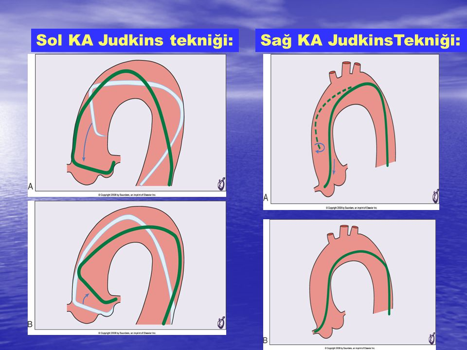 Sol KA Judkins tekniği:Sağ KA JudkinsTekniği: