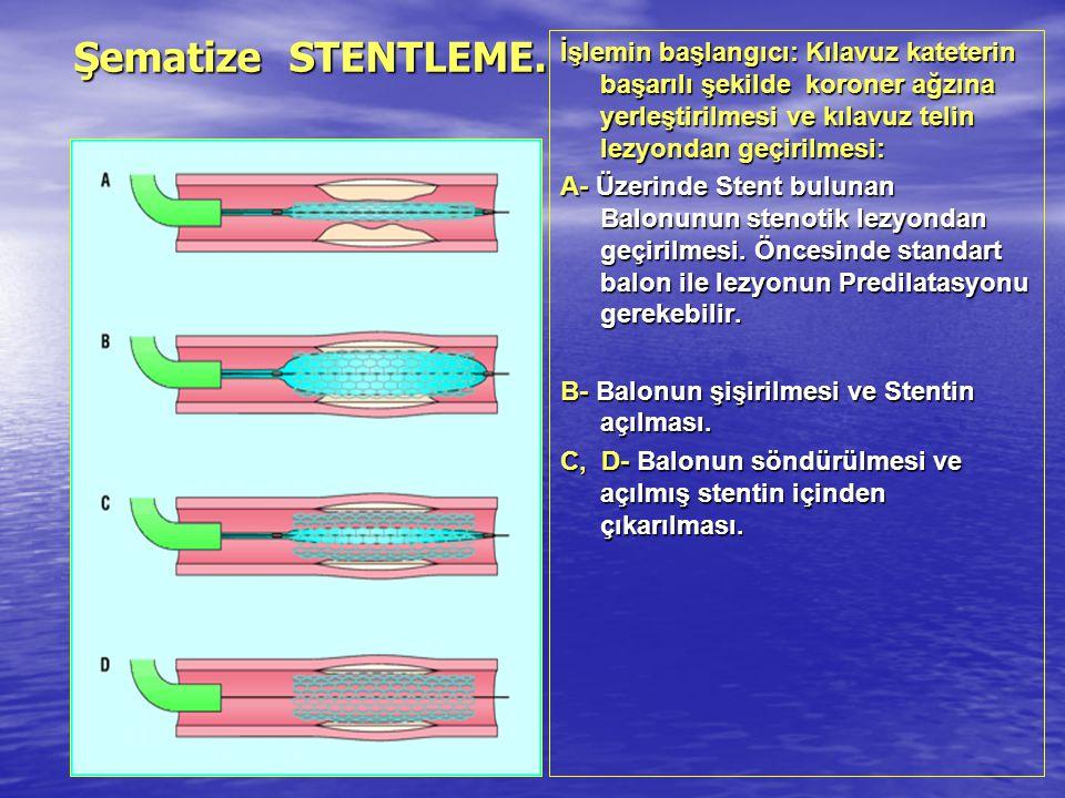 Şematize STENTLEME. İşlemin başlangıcı: Kılavuz kateterin başarılı şekilde koroner ağzına yerleştirilmesi ve kılavuz telin lezyondan geçirilmesi: A- Ü