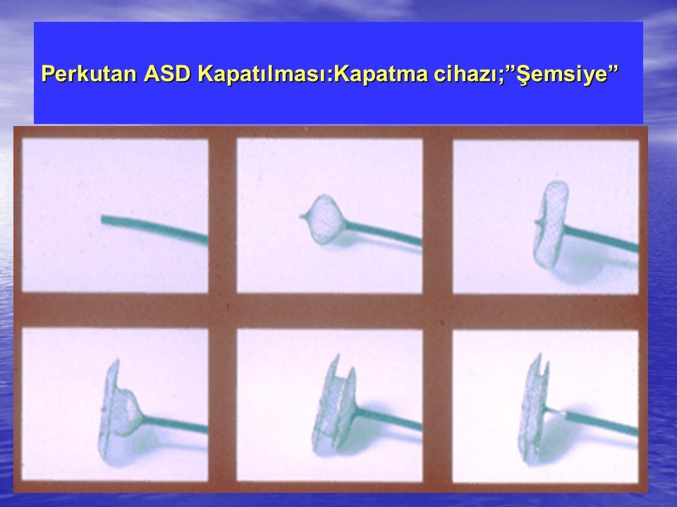Perkutan ASD Kapatılması:Kapatma cihazı; Şemsiye