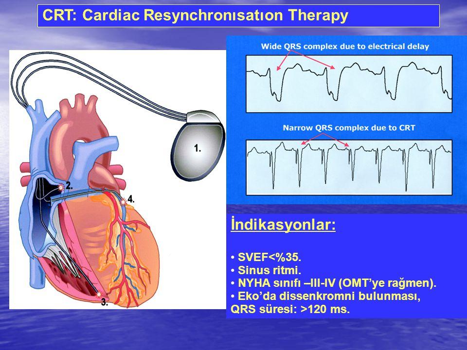 CRT: Cardiac Resynchronısatıon Therapy İndikasyonlar: SVEF<%35. Sinus ritmi. NYHA sınıfı –III-IV (OMT'ye rağmen). Eko'da dissenkromni bulunması, QRS s