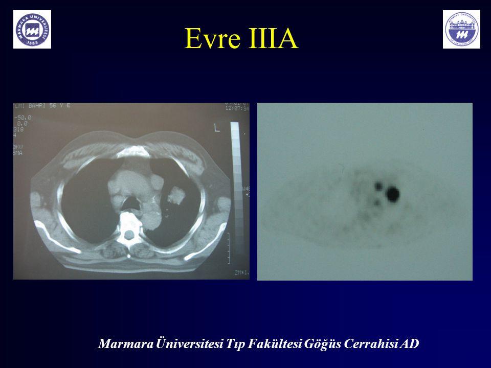 Marmara Üniversitesi Tıp Fakültesi Göğüs Cerrahisi AD Evre IIIA