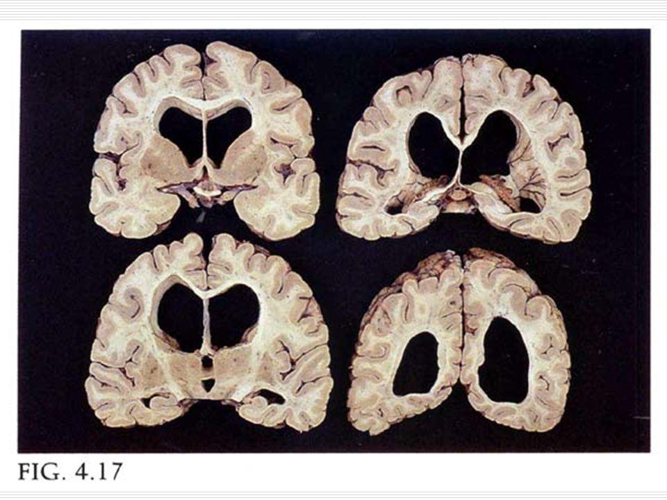 Pick hastalığı  Mik: Nöronal kayıp dış üç tabakada belirgindir.Karekteristik şişkin (Pick hücreleri) ve Pick cismi:sit,oval yuvarlak zayıf eozinofilik ancak gümüş ile iyi saptanan filamantöz inkuluzyon