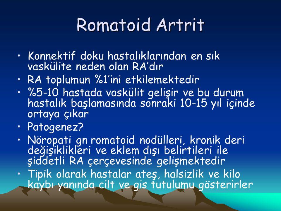 Romatoid Artrit Konnektif doku hastalıklarından en sık vaskülite neden olan RA'dır RA toplumun %1'ini etkilemektedir %5-10 hastada vaskülit gelişir ve bu durum hastalık başlamasında sonraki 10-15 yıl içinde ortaya çıkar Patogenez.