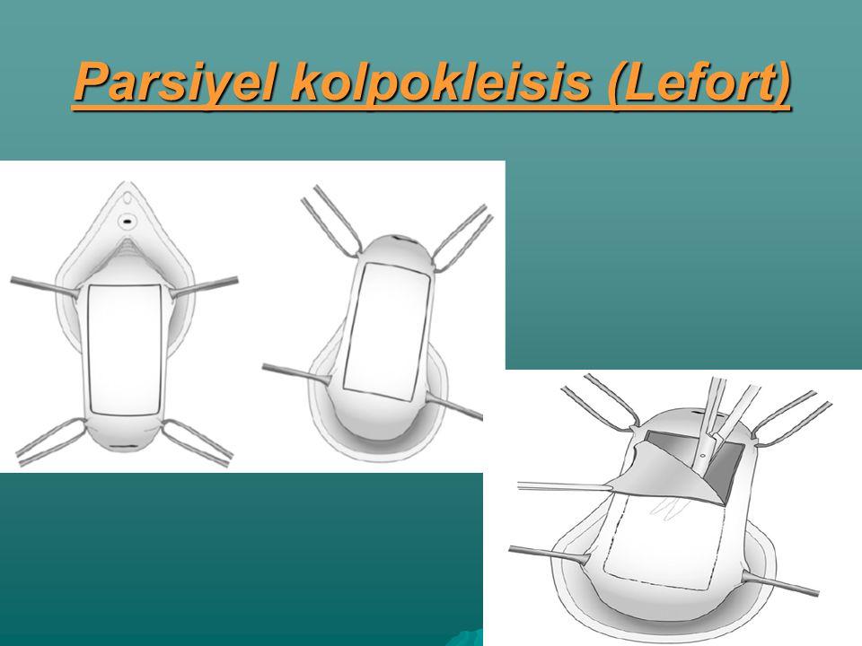 Parsiyel kolpokleisis (Lefort)