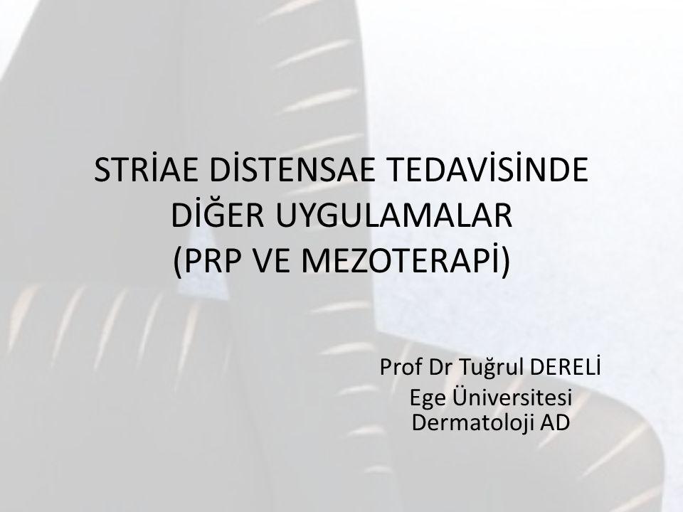 STRİAE DİSTENSAE TEDAVİSİNDE DİĞER UYGULAMALAR (PRP VE MEZOTERAPİ) Prof Dr Tuğrul DERELİ Ege Üniversitesi Dermatoloji AD