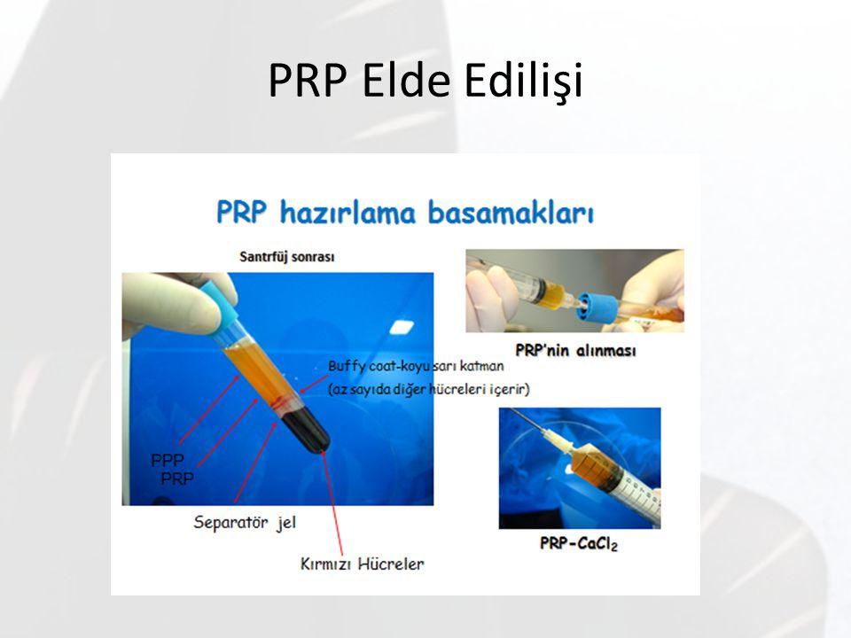 PRP Elde Edilişi