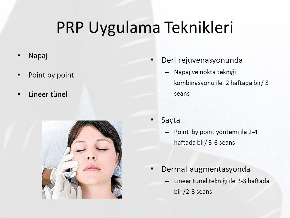 PRP Uygulama Teknikleri Napaj Point by point Lineer tünel Deri rejuvenasyonunda – Napaj ve nokta tekniği kombinasyonu ile 2 haftada bir/ 3 seans Saçta