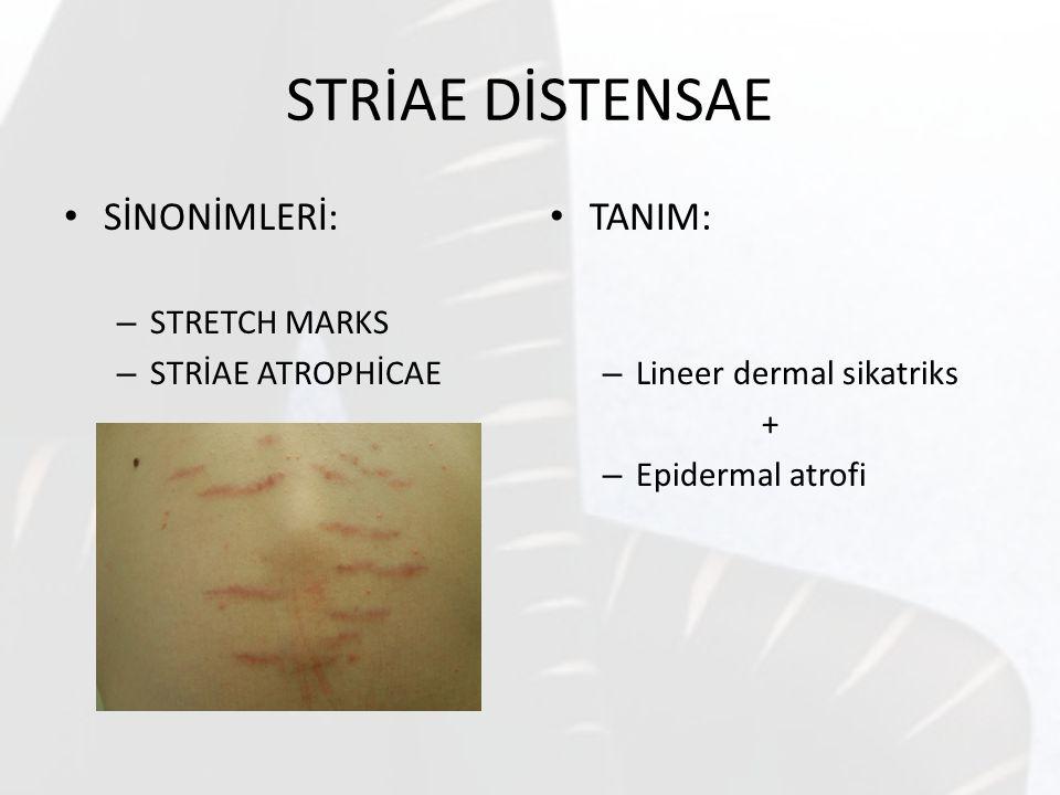 STRİAE DİSTENSAE SİNONİMLERİ: – STRETCH MARKS – STRİAE ATROPHİCAE TANIM: – Lineer dermal sikatriks + – Epidermal atrofi