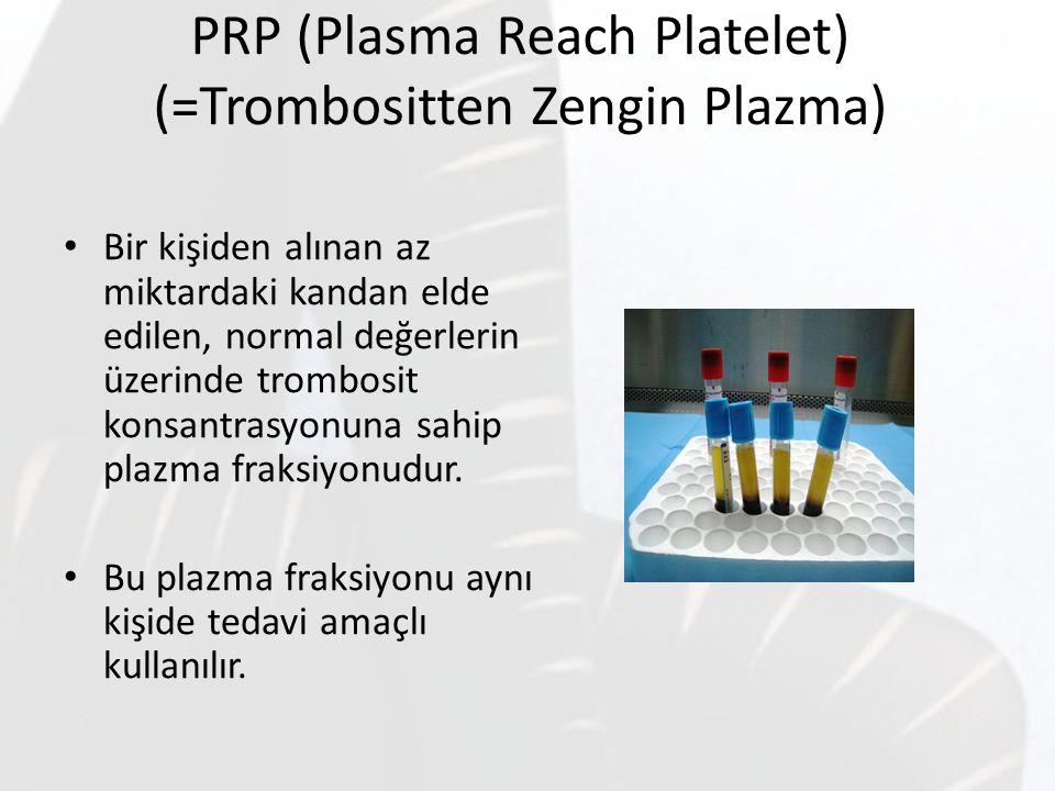 PRP (Plasma Reach Platelet) (=Trombositten Zengin Plazma) Bir kişiden alınan az miktardaki kandan elde edilen, normal değerlerin üzerinde trombosit ko