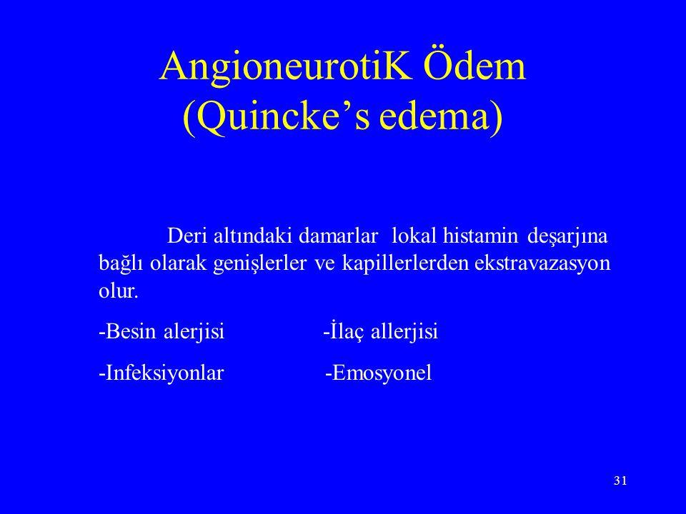 31 AngioneurotiK Ödem (Quincke's edema) Deri altındaki damarlar lokal histamin deşarjına bağlı olarak genişlerler ve kapillerlerden ekstravazasyon olu