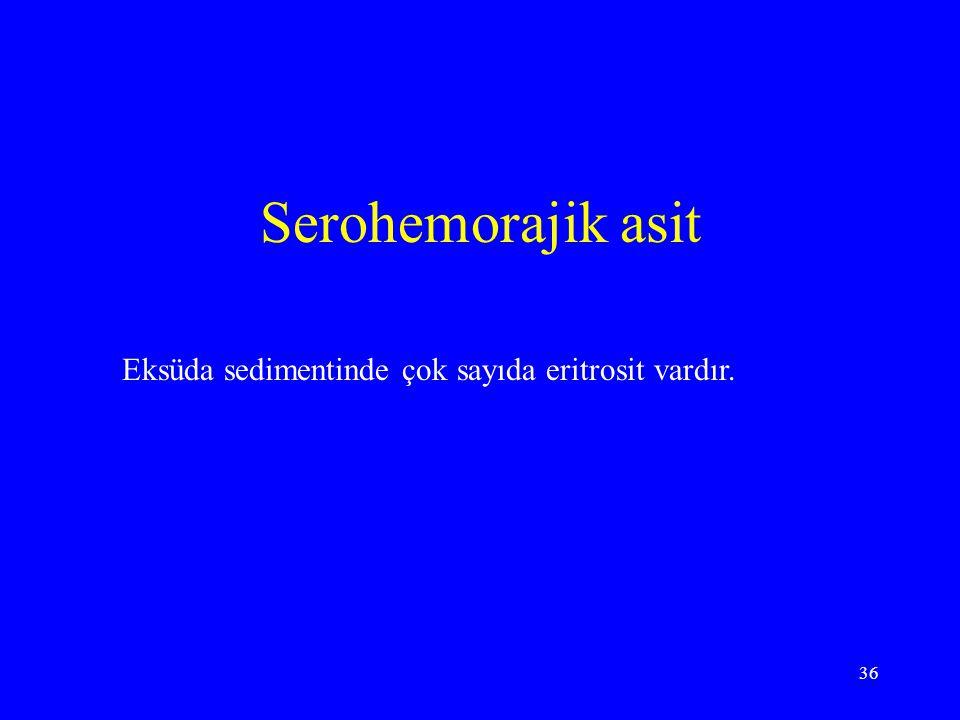 36 Serohemorajik asit Eksüda sedimentinde çok sayıda eritrosit vardır.