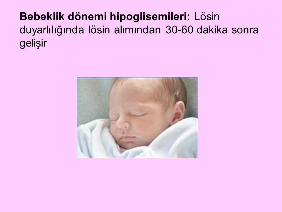 Bebeklik dönemi hipoglisemileri: Lösin duyarlılığında lösin alımından 30-60 dakika sonra gelişir