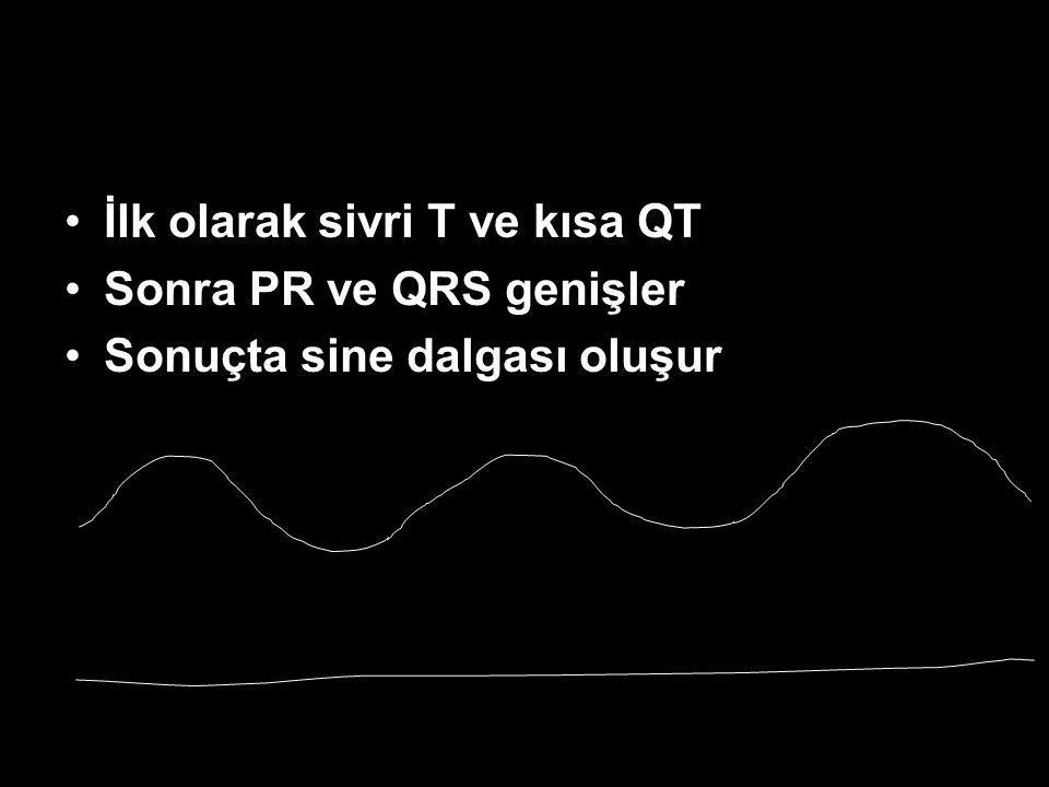 İlk olarak sivri T ve kısa QT Sonra PR ve QRS genişler Sonuçta sine dalgası oluşur