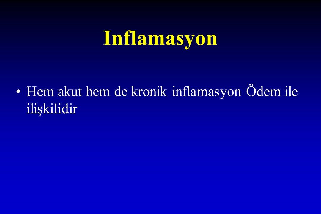 Inflamasyon Hem akut hem de kronik inflamasyon Ödem ile ilişkilidir