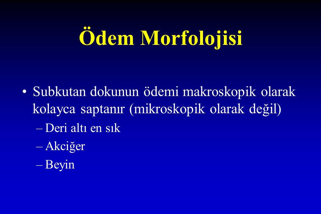 Ödem Morfolojisi Subkutan dokunun ödemi makroskopik olarak kolayca saptanır (mikroskopik olarak değil) –Deri altı en sık –Akciğer –Beyin