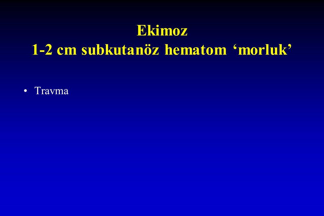 Ekimoz 1-2 cm subkutanöz hematom 'morluk' Travma