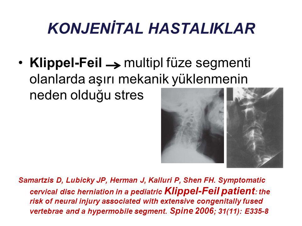 KONJENİTAL HASTALIKLAR Klippel-Feil multipl füze segmenti olanlarda aşırı mekanik yüklenmenin neden olduğu stres Samartzis D, Lubicky JP, Herman J, Ka