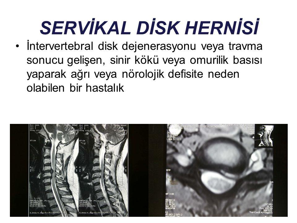 SERVİKAL DİSK HERNİSİ İntervertebral disk dejenerasyonu veya travma sonucu gelişen, sinir kökü veya omurilik basısı yaparak ağrı veya nörolojik defisi
