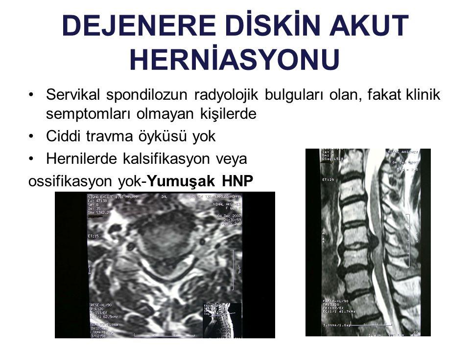 DEJENERE DİSKİN AKUT HERNİASYONU Servikal spondilozun radyolojik bulguları olan, fakat klinik semptomları olmayan kişilerde Ciddi travma öyküsü yok He