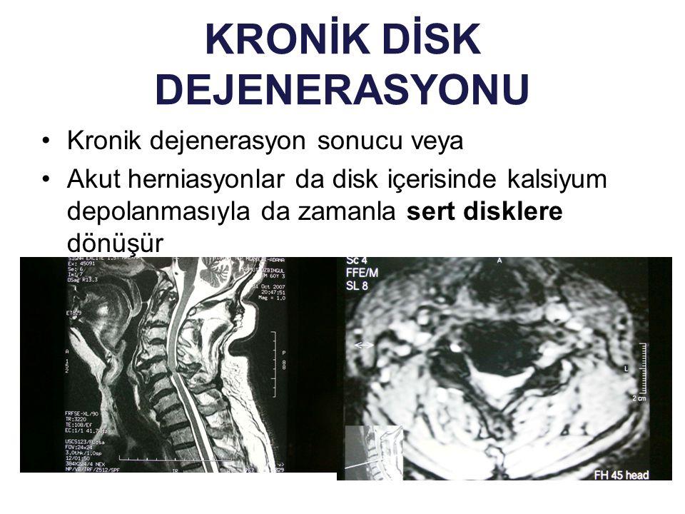 KRONİK DİSK DEJENERASYONU Kronik dejenerasyon sonucu veya Akut herniasyonlar da disk içerisinde kalsiyum depolanmasıyla da zamanla sert disklere dönüş