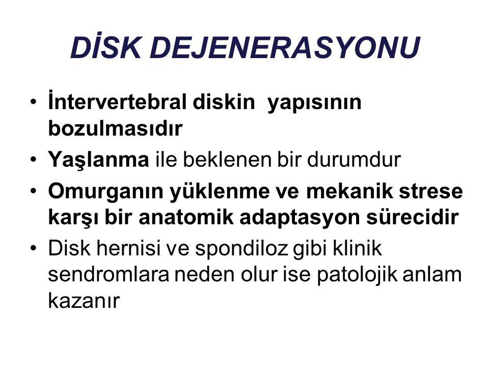 DİSK DEJENERASYONU İntervertebral diskin yapısının bozulmasıdır Yaşlanma ile beklenen bir durumdur Omurganın yüklenme ve mekanik strese karşı bir anat