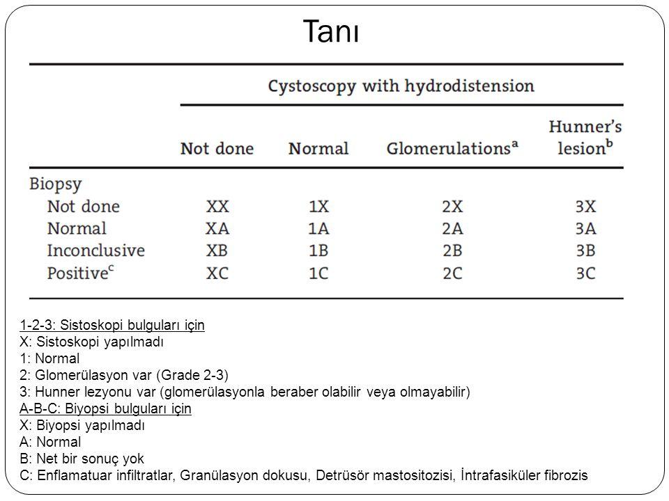 Tanı 1-2-3: Sistoskopi bulguları için X: Sistoskopi yapılmadı 1: Normal 2: Glomerülasyon var (Grade 2-3) 3: Hunner lezyonu var (glomerülasyonla berabe