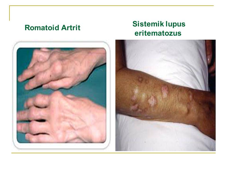 Romatoid Artrit Sistemik lupus eritematozus