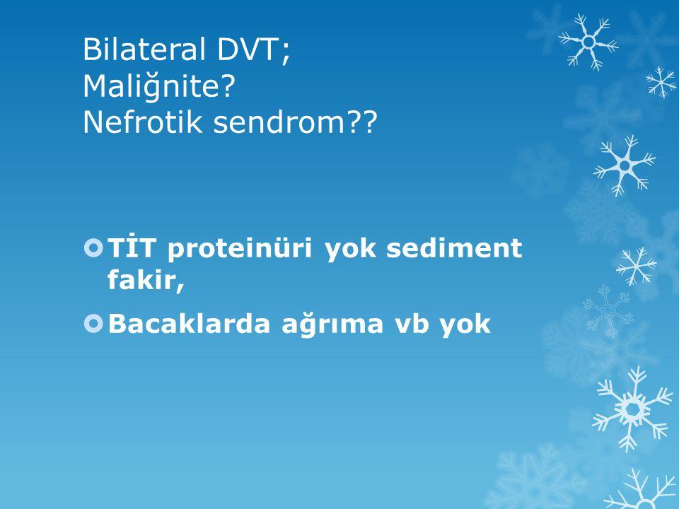 Bilateral DVT; Maliğnite.Nefrotik sendrom?.