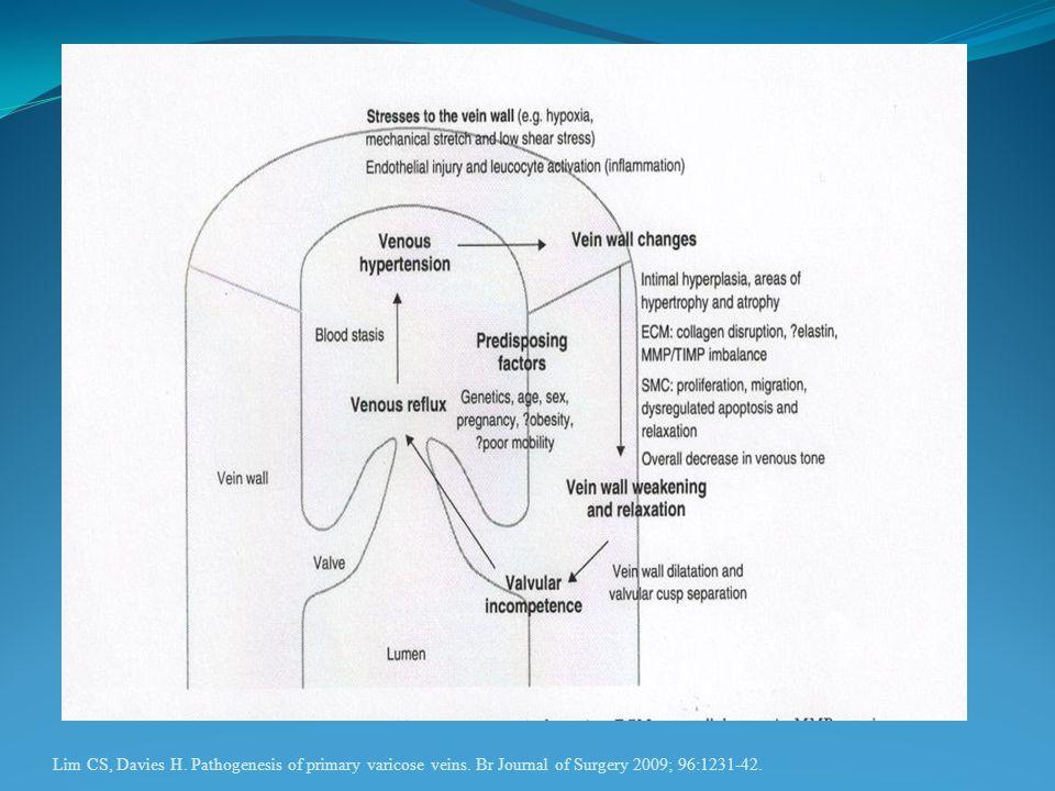 Lim CS, Davies H. Pathogenesis of primary varicose veins. Br Journal of Surgery 2009; 96:1231-42.