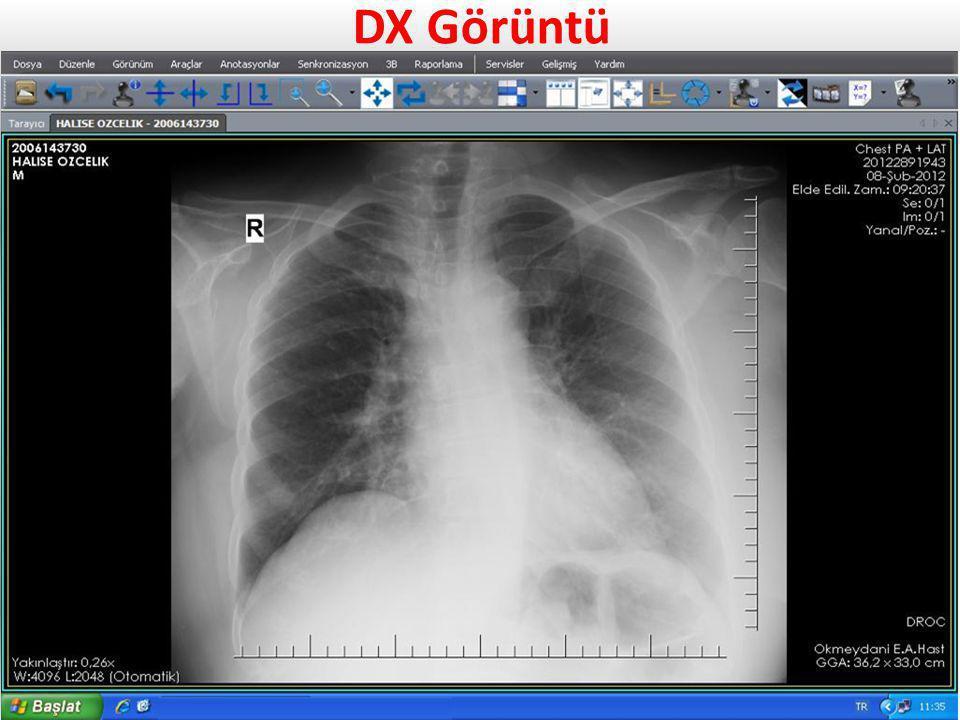 DX Görüntü