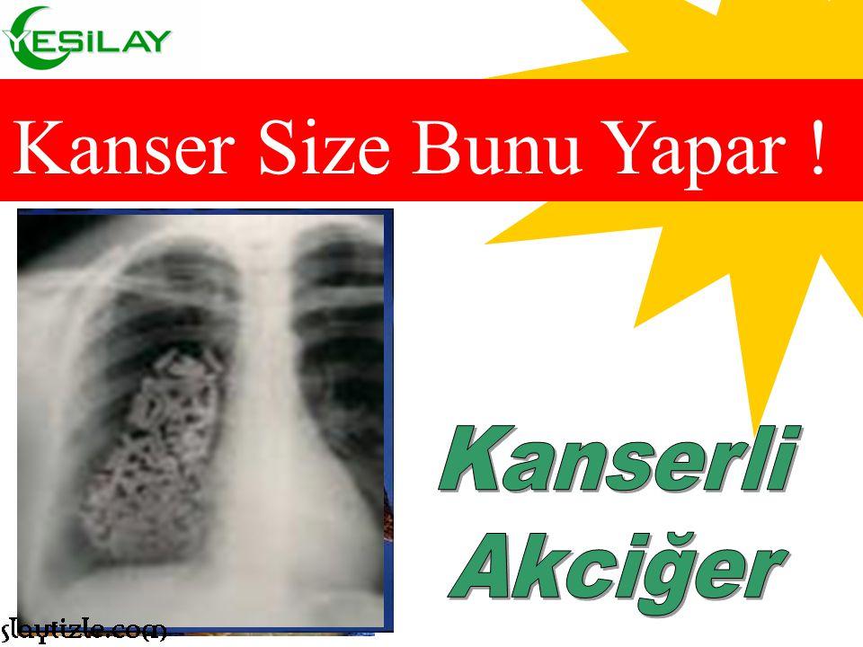 Sigara içenlerin, yakalanma riski yüksek olan kanser Hastalıklarından bazıları… Kanser Riski .