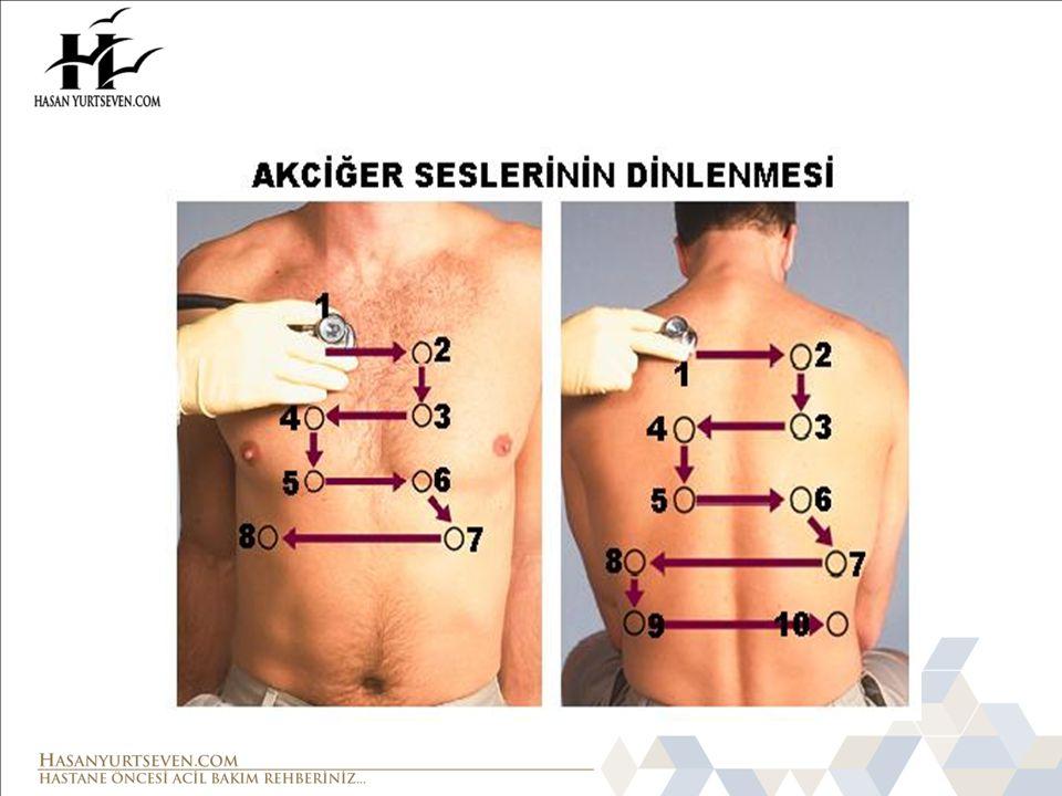 NORMAL(VEZİKÜLER) SOLUNUM SESLERİ Göğüs steteskopla dinlenirken duyulan; havanın normal akciğer dokusundan geçerken oluşturduğu sese, veziküler (normal) akciğer sesleri denilmektedir.