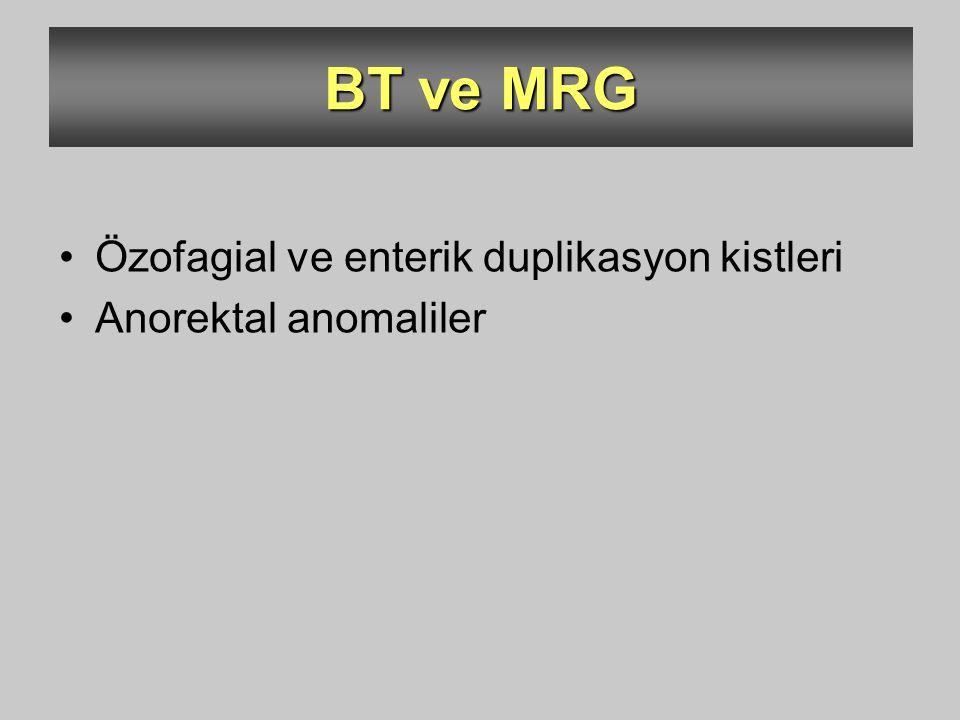 BT ve MRG Özofagial ve enterik duplikasyon kistleri Anorektal anomaliler