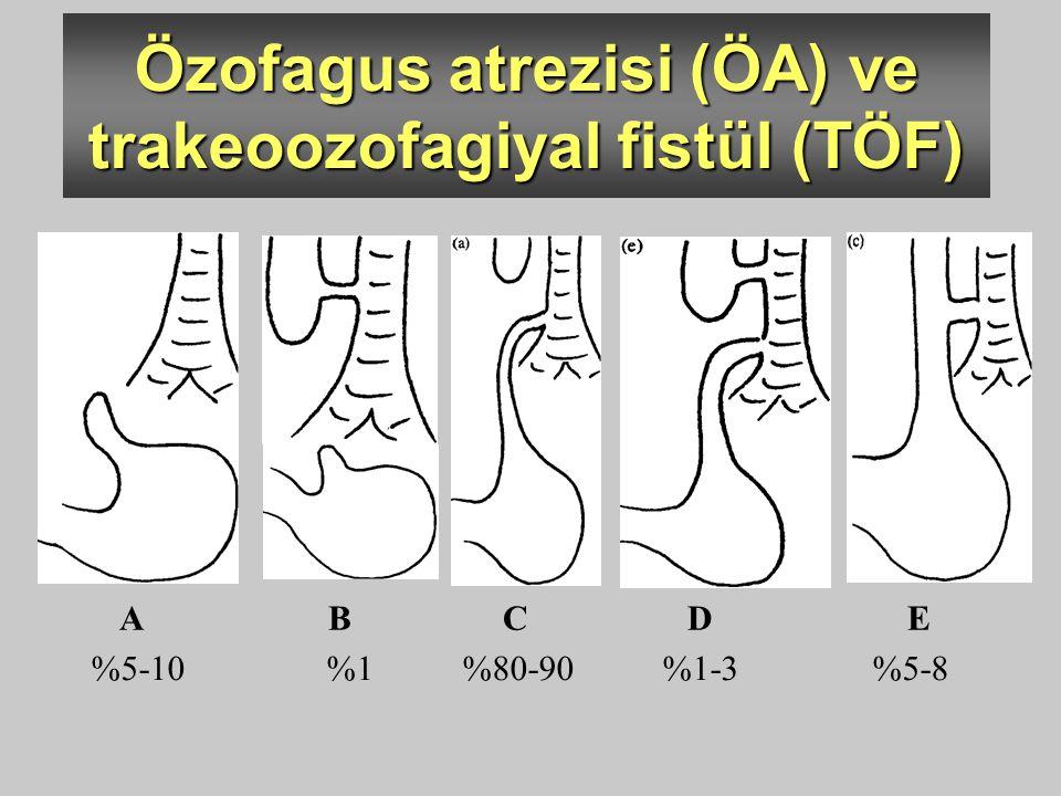 A B C D E %5-10 %1 %80-90 %1-3 %5-8 Özofagus atrezisi (ÖA) ve trakeoozofagiyal fistül (TÖF)