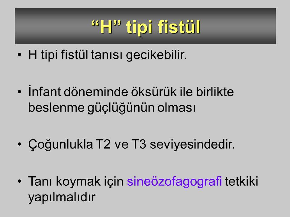 """""""H"""" tipi fistül H tipi fistül tanısı gecikebilir. İnfant döneminde öksürük ile birlikte beslenme güçlüğünün olması Çoğunlukla T2 ve T3 seviyesindedir."""