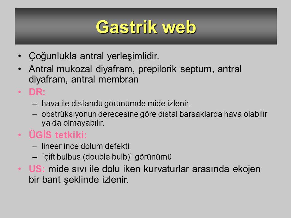 Gastrik web Çoğunlukla antral yerleşimlidir. Antral mukozal diyafram, prepilorik septum, antral diyafram, antral membran DR: –hava ile distandü görünü